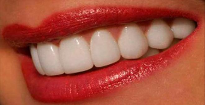 Я очень комплексовала из-за желтых зубов, пока не попробовала этот натуральный отбеливатель. Даже мой стоматолог удивлен результату!