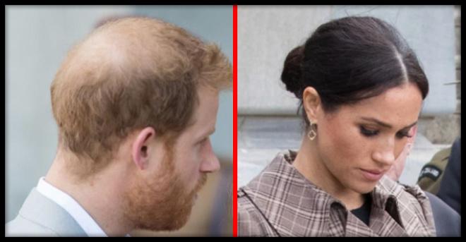 «Королевский апгрейд»: Меган Маркл отправила лысеющего мужа в клинику