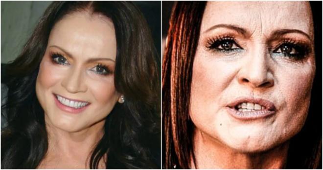 «Даже дорогой макияж не спасает»: Известные артисты с не такой уж и «идеальной кожей»