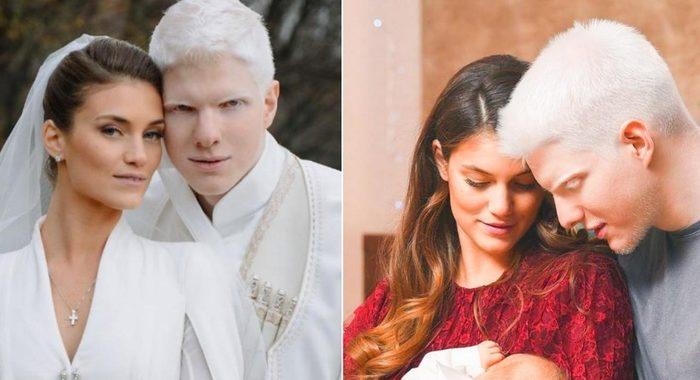 Удивительная внешность этой чудесной пары: альбинос Бера Иванишвили и его жена Нанука Гудавадзе