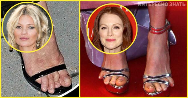 Испортили ноги модной обувью. Фото знаменитостей с искореженными ступнями