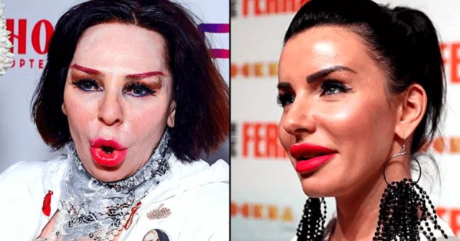 «Неужели они себя в зеркале не видят»: знаменитости, которые явно переборщили с пластикой